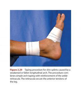 Shin Splints taping ankle
