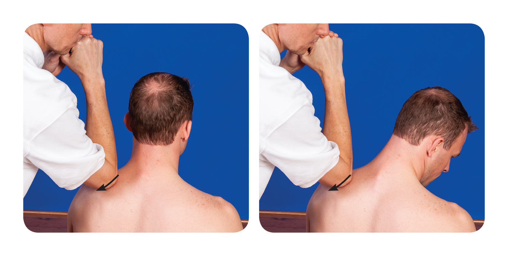 Active assisted soft tissue release for the upper back levator scapulae
